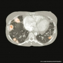 Staphylococcus aureus, septische pulmonale Herde, Endokarditis