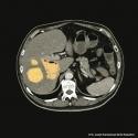 Klebsiella pneumoniae, Hypervirulente Klebsiella pneumoniae